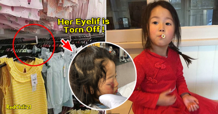 Horrific Accident: 6 yo Girls Eyelid Is Torn Off After